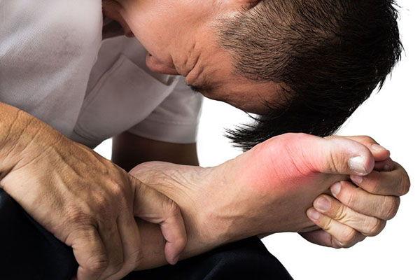 sintomas ácido úrico